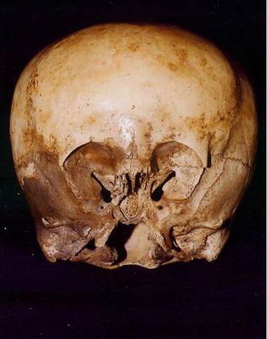 File:Starchild Skull.jpg