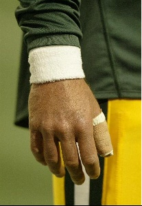 File:Broken Thumb Smaller.jpg