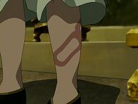 Long Feng's bite mark