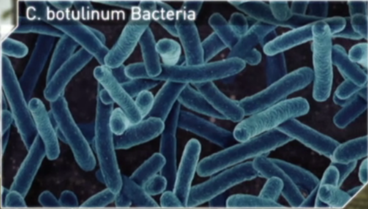 clostridium botulinum Clostridium botulinum clostridium botulinum is the cause of a life-threatening foodborne illness called botulism due to the neurotoxin production that grows in food.