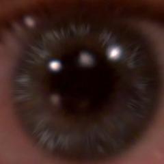 Sheldon's eyeball.