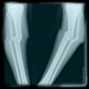 File:GUL XRayPic4 Diffuse.png