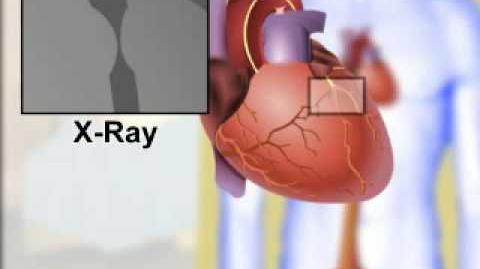 Cardiac Catheterization