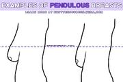 Pendulous-examples