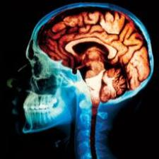 File:Brain from xray.jpg