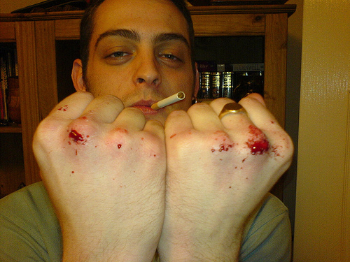 File:Bloody Knuckles.jpg