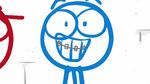 Blue's braces