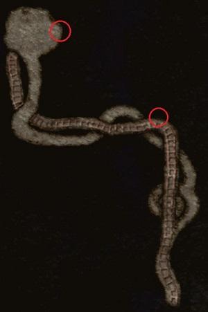 File:Lockjaw Location.jpg