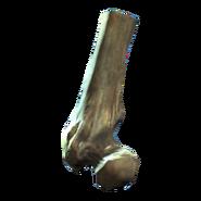 Broken femur