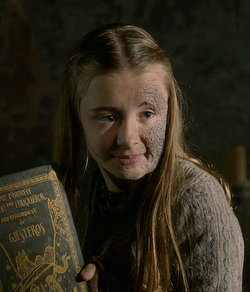 Shireen Baratheon