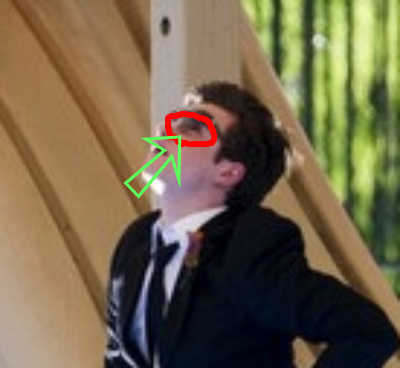 File:Kurt black eye.jpg