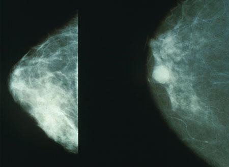 File:Mammo breast cancer.jpg