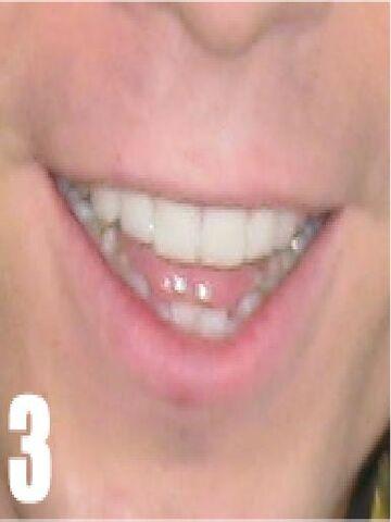 File:Lips3.jpg