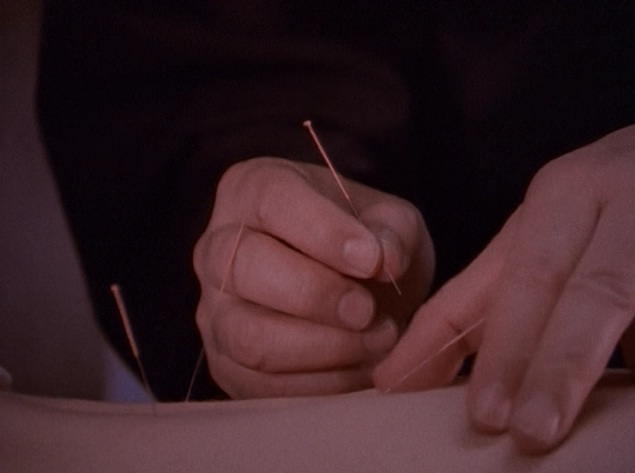 File:Acupuncture.jpg