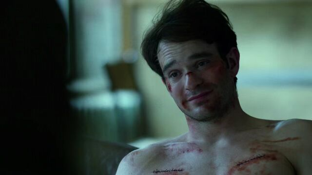 File:Matt-Murdock-Stitches-Smile.jpg