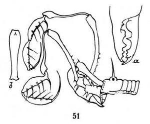 Sarasinica femoralis Roewer-1938b
