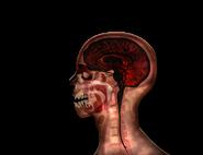MRI stage05@2x