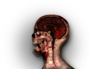 MRI stage06@2x