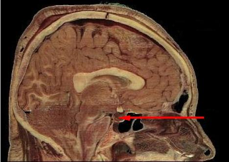 File:Location pituitary.jpg