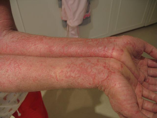 File:Eczema-arms.jpg