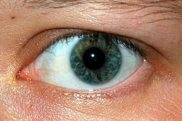File:Oeil better.jpg