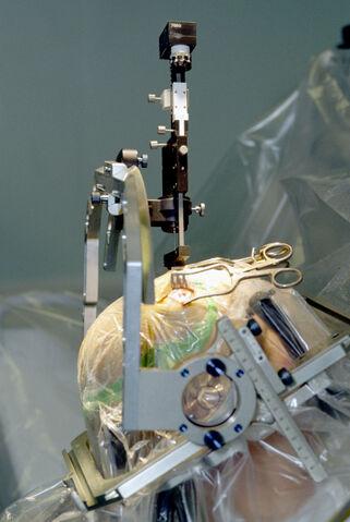 File:Parkinson surgery.jpg