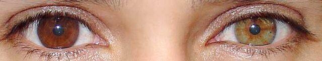 File:Heterochromiadeux.jpg