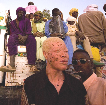 File:Albino man from niger.jpg
