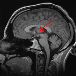 Brain chrischan thalamus
