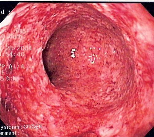 File:CD colitis 2.jpg