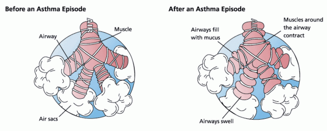 File:Asthma before-after.png