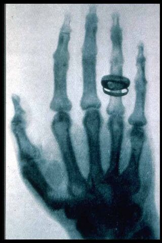 File:Roentgen-x-ray-von-kollikers-hand.jpg