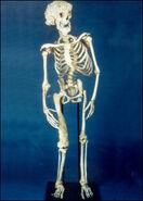 Joseph Merrick skeleton