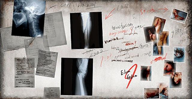 File:X-Ray Board.jpg