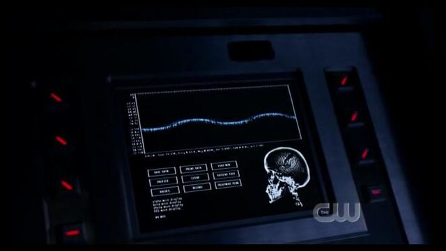 File:Brain monitoring.jpg