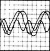 EKG Dralasite