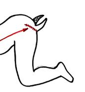 the human centipede  surgery