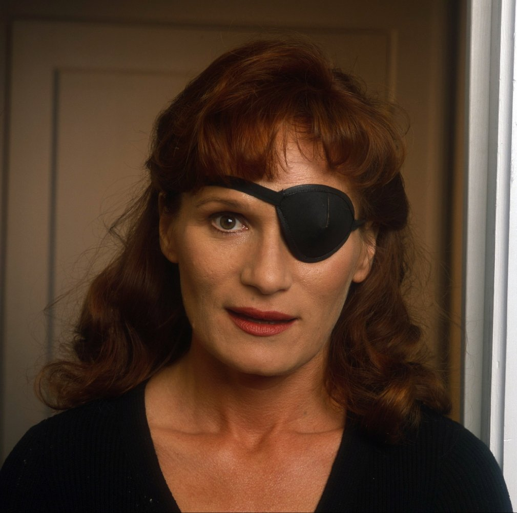 eyepatch dating Users interested in eyepatch plentyoffish is a free dating service  register here to use this free dating service, and start contacting other users for free.