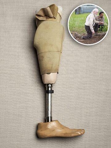 File:Prosthetic leg.jpg
