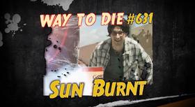 Sun Burnt