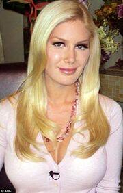 Heidi-montag-back-scoop-surgery