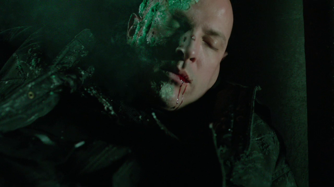 Image - Cyrus Gold's face is burnt by chemicals.png | Arrowverse ...
