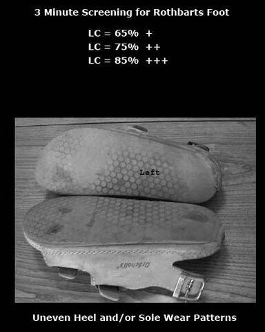 File:Uneven Shoe Wear Patterns.jpg