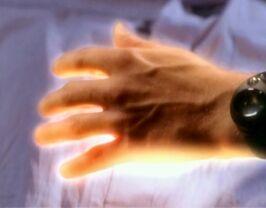 Healing-hand-1x14-1-