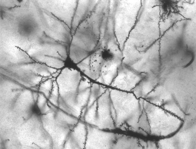 File:Pyramidal hippocampal neuron 40x (1).jpg