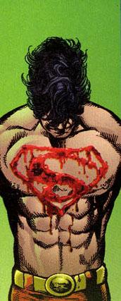 Superboyprison