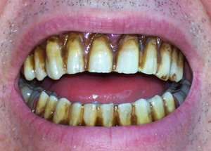 File:Zombie Teeth.jpg