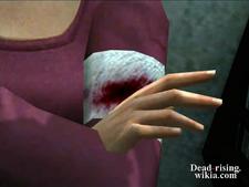Dead rising simone's bite