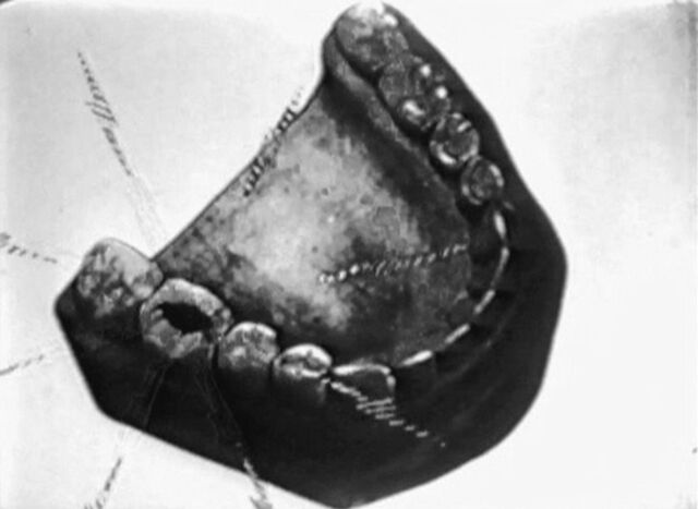 File:Tommy tuckers tooth 4.jpg