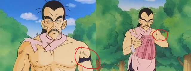 File:Missing Arm Band.png